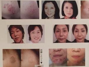 皮膚再生エイジング、ニキビ、シミ、そばかすに効果的